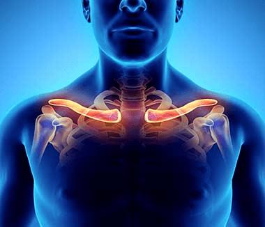 Aparate pentru tratamentul artrozei umărului