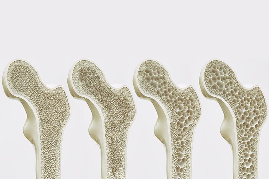 i.php?p=header osteoporoza.jpg