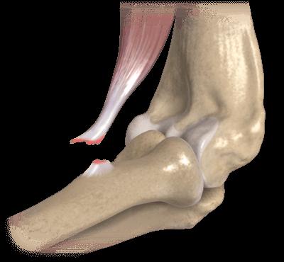 cum să tratezi microfractura tendonului cotului