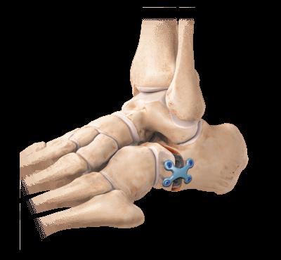 dureri de umflare articulară