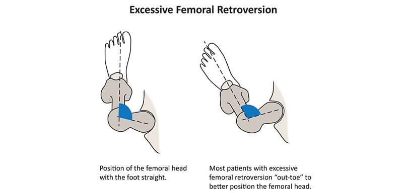 retroversie femurala