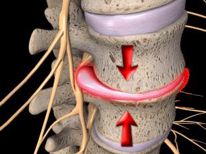 Osteoartrita intervertebrala
