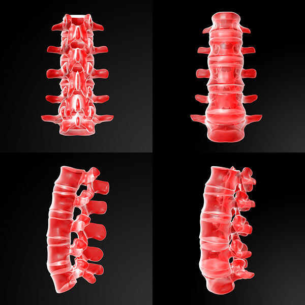 coloana vertebrala discopatie lombara