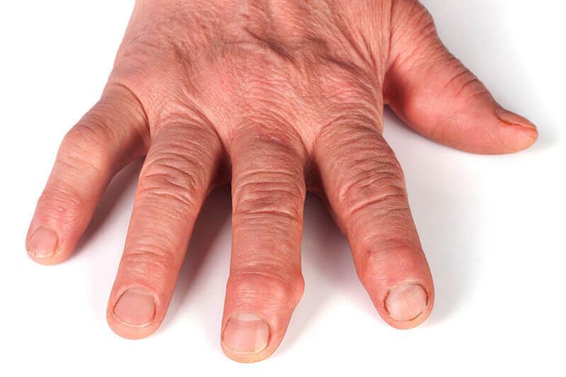 complicatii poliartrita reumatoida