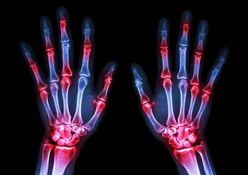 radiografie poliartrita reumatoida