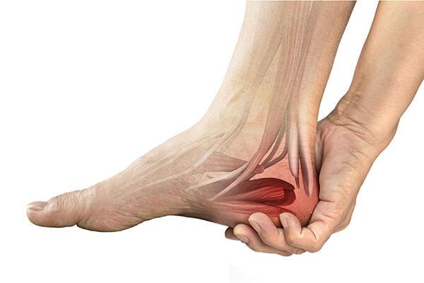 cauzele durerilor de calcai