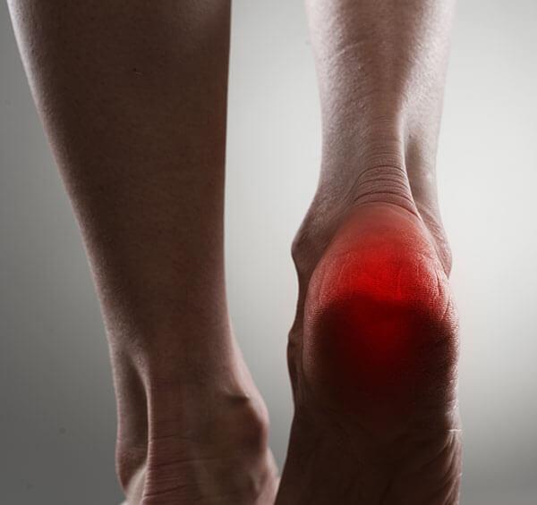 dureri de calcai